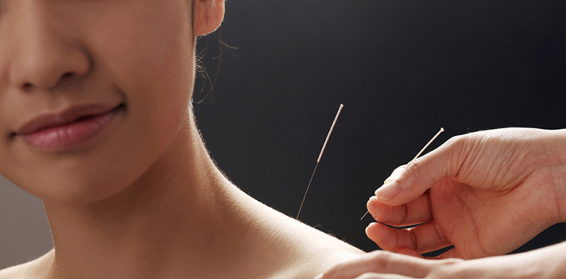 Woman is receiving acupuncture