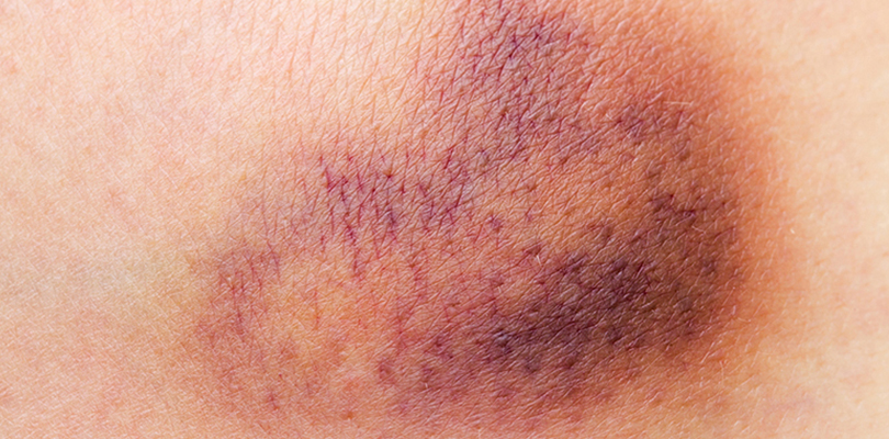 A large bruise appears on a person's body