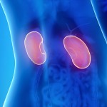 How Do I Know If I Have Kidney Stones?