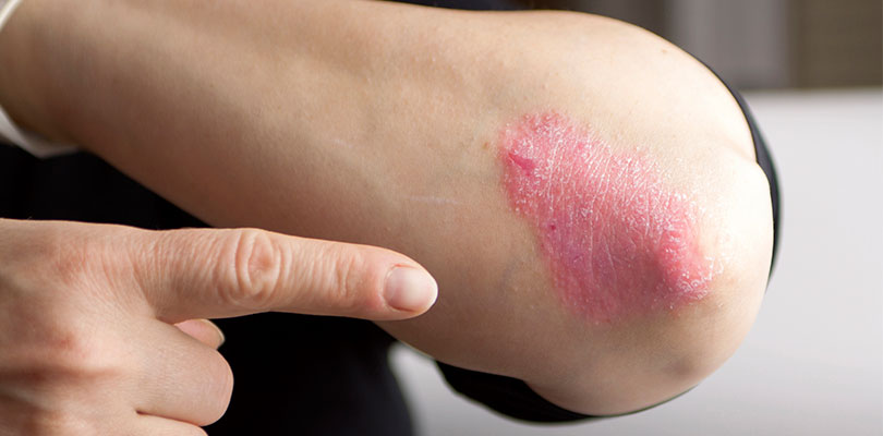 Tell your doctor if you think that your psoriasis has become worse since starting an anti-inflammatory 1