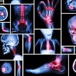 What Are the Different Types of Arthritis?