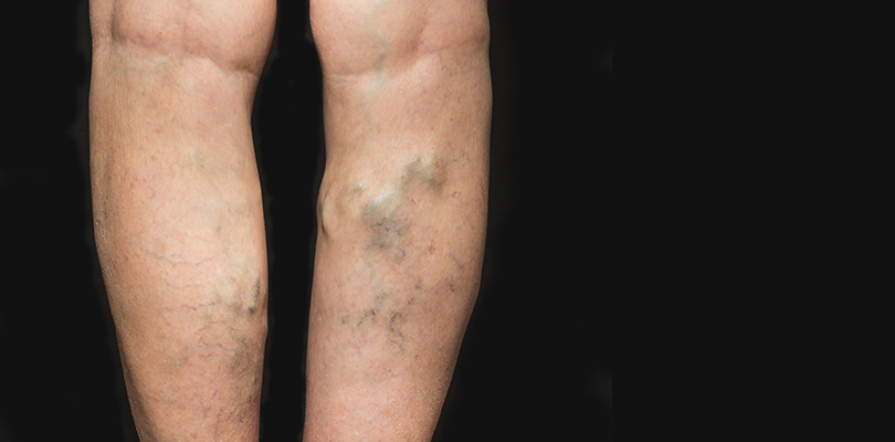 Close up of legs with varicose veins