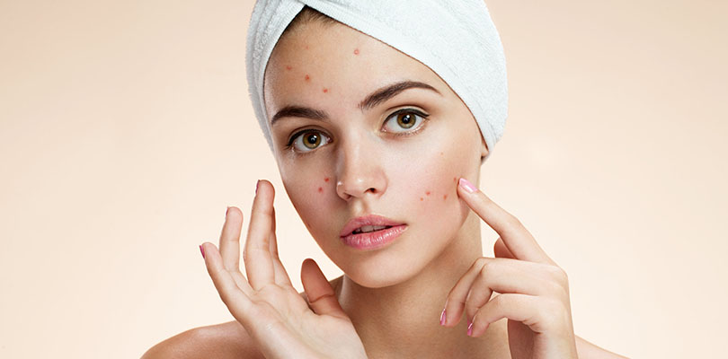 A woman is apply tea tree oil onto her acne-prone skin
