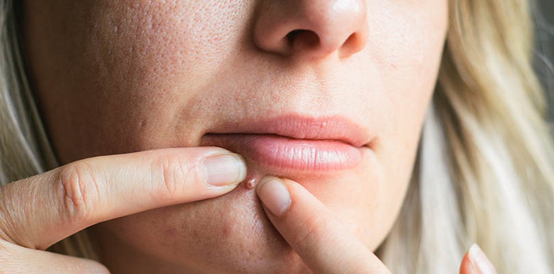 A woman is picking at her adult acne-prone skin
