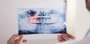 A x-ray of wisdom teeth