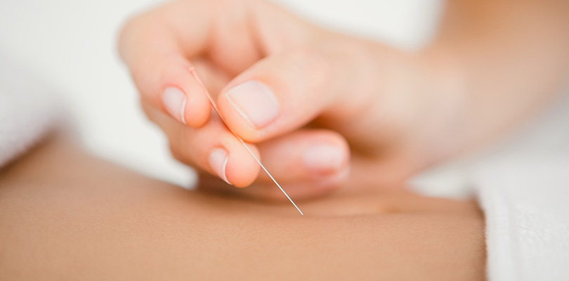 Acupuncture is being performed on a stomach