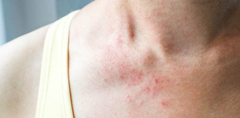 Eczema on an individual's collarbones