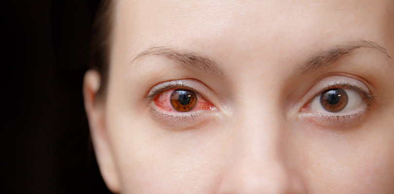 Woman with a right infectious pink eye